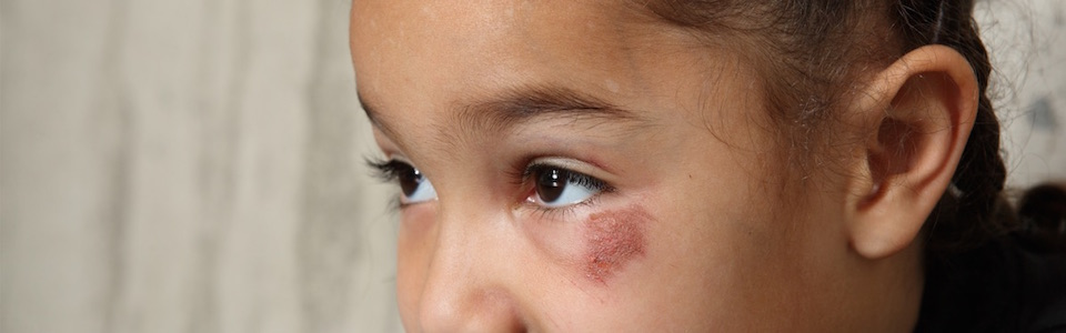 Header image of child with eye injury