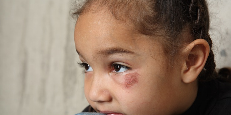 Thumbnail image of young person with eye injury